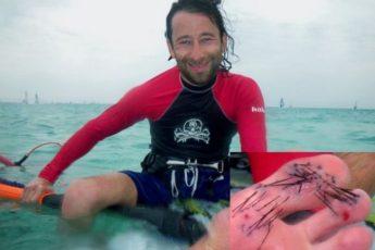 Морской еж: испорченный отпуск
